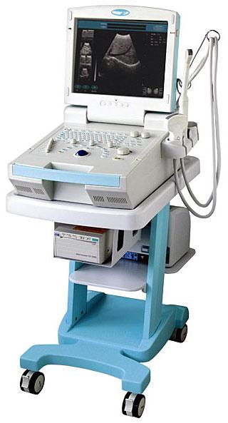 ультразвуковой сканер узи